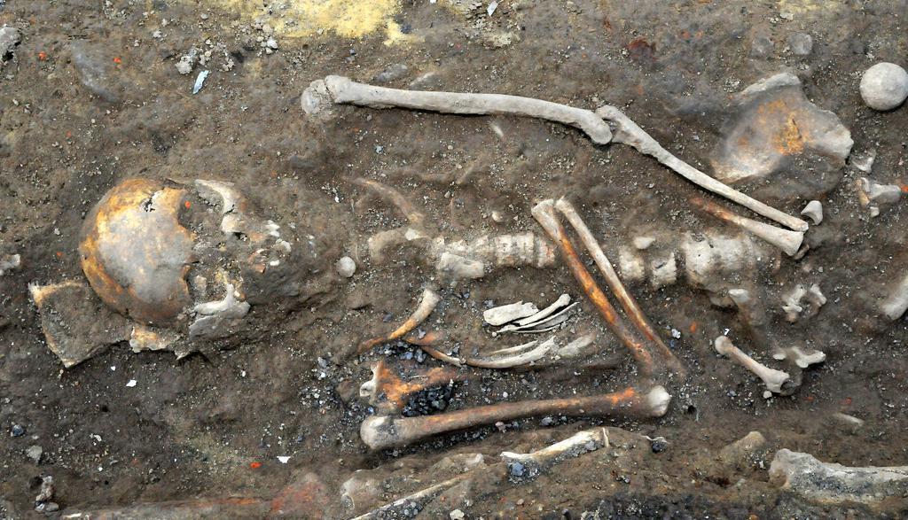 Ziemlich Skelettteile Galerie - Menschliche Anatomie Bilder ...