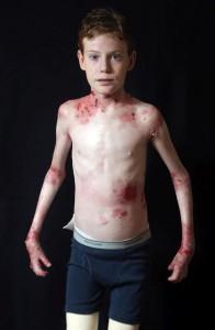 Ein Teenager,  Jonathan Pitre, leidet an Epidermolysis bullosa (EB) - eine seltene Erkrankung, die durch schwere Blasenbildung und schälen der Haut, die Jonathan ständig Schmerzen bereitet.