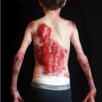 Ein Teenager,  Jonathan Pitre, leidet an Epidermolysis Bullosa (EB) – eine seltene Erkrankung, die durch schwere Blasenbildung und schälen der Haut, die Jonathan ständig Schmerzen bereitet.
