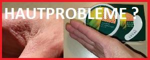 Hautprobleme ? Hier finden Sie Lösungen, Hautprobleme, Vegas Vital, Carmen Doell,