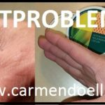 Hautprobleme ? Hier finden Sie Lösungen